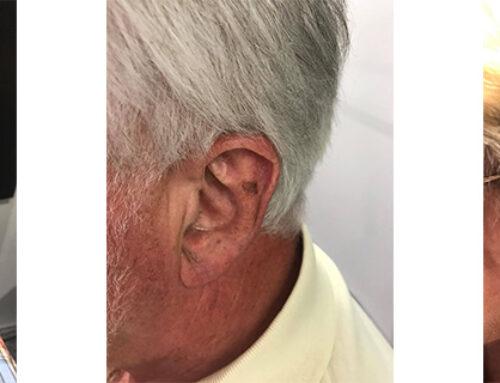Wegen gesellschaftlichem Scham oder Eitelkeit kein Hörgerät?